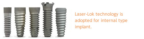 Laser-rok technology is adopted for internal type of Implant