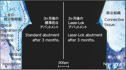 effect of Laser-rok abutnment