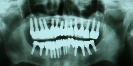 x-ray  photo during Dental Implants treatment