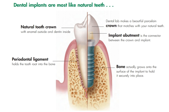Dental implants are most like natural teeth