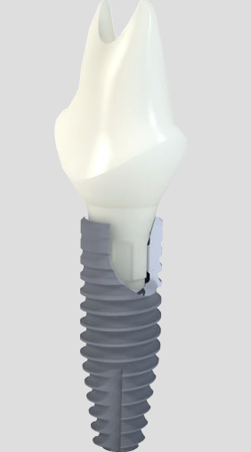 Straumann Bone Level Tapered Implant