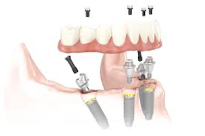 Who is a candidate for All-on 4 Dental Implants?